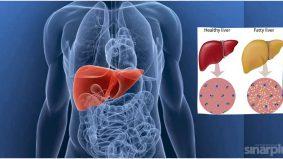 Awas penyakit hati sukar dikesan, kawal pengambilan gula