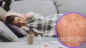 Rupanya virus penyebab cacar air terus hidup dalam badan, boleh berubah jadi kayap