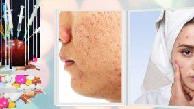 Waspada produk kosmetik palsu, kesan pada kesihatan bukan biasa-biasa, boleh undang maut