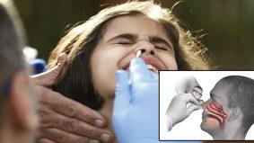 Pengambilan sampel swab hidung, rasa macam ditusuk otak dari hidung?