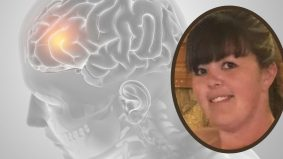 Kemoterapi ditunda gara-gara 'lockdown', wanita derita kanser otak tahap empat maut