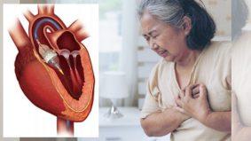 Rawat masalah jantung rendah risiko dengan TAVI, orang muda pun patut ambil tahu