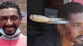 Lelaki tertusuk pisau di kepala kembali kerja selepas 3 hari, pernah ditembak tujuh kali