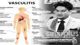 Punca kemangkatan putera Sultan Brunei, penyakit vaskulitis yang ramai tak tahu