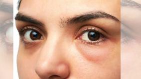 5 petua hilangkan eye bag, antaranya timun dan minyak badam