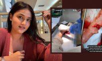 Berdepan detik cemas, jari Puteri Aishah terkoyak akibat hirisan pisau
