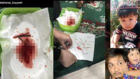 Bapa Anas kongsi foto jarum beserta darah, rayu hentikan santau?