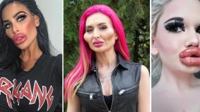 6 wanita ini buat pembedahan paling ekstrem demi cantik, nombor 4 memang paling pelik