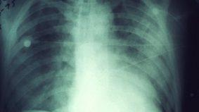 Jangan ambil mudah jika terkena jangkitan paru-paru, boleh bawa maut