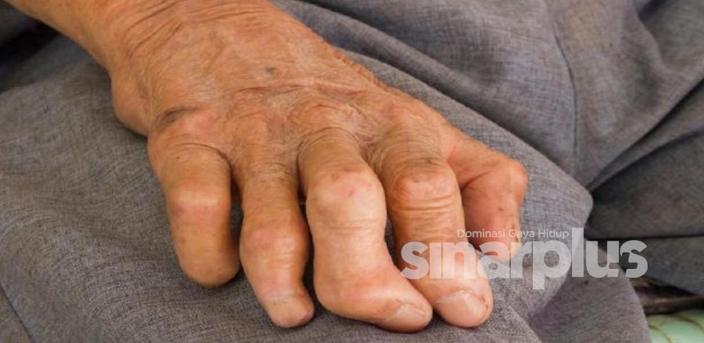 Penyakit berjangkit kronik antara tertua di dunia, KKM kongsi fakta mengenai penyakit kusta