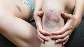 Elak lakukan 4 perkara ini jika ada anggota badan lebam teruk, guna beberapa kaedah yang disyorkan…