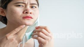 KKM kongsi 8 langkah pencegahan 'mask acne' akibat pemakaian pelitup muka