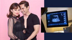 Isteri hamil anak pertama, Nazrief Nazri bakal bergelar bapa