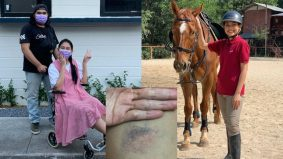 Tragedi jatuh kuda, Sissy Imann perlu berehat sebulan