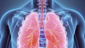 Awas! Bukan hanya perokok boleh menghidap kanser paru-paru