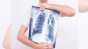 Terkejut didiagnos kanser walau sudah bertahun tinggalkan tabiat merokok