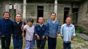 Kenali manusia kerdil, antara 8,000 penyakit jarang jumpa dunia