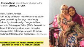 Derita pesakit jantung ini kembali selepas 20 tahun, perlukan dana pembedahan RM80,000