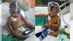 Selain sindrom down dan kanser, si kecil ini menderita buah pinggang dijangkiti kuman hingga bernanah