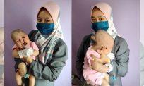Sayunya hati ibu. Otak bayi ini terkeluar dari tempurung kepala  perlukan dana sumbangan orang ramai