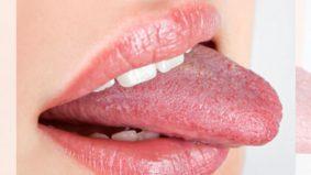 Jadi pelat bukan dek lidah pendek ya. Ini puncanya...