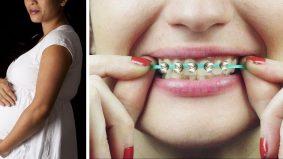 Wanita menyesal pakai fake braces semasa mengandung, dikhuatiri keguguran