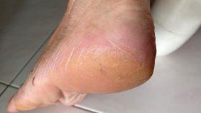 Cara berkesan lembutkan tumit kaki yang merekah