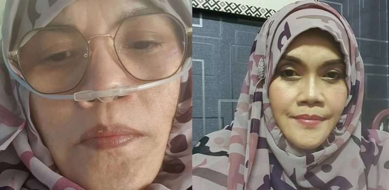 Oksigen turun ke 88, Aishah mohon maaf dan doa supaya tidak ke tahap ditidurkan