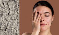 Mandi menggunakan air hangat boleh menyebabkan kulit kering. Ketahui 5 perkara lain yang turut menyebabkan hal yang sama